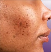 Hyperpigmentation spots due to acne