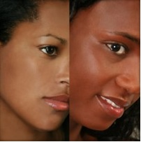 Pigmentation and specificites on black and dark skin