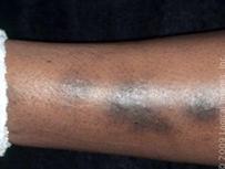 taches corps peau noire