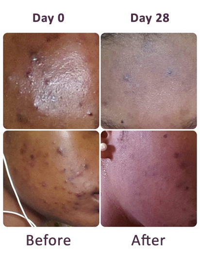Bineta – She treated spots and acne with IN'OYA