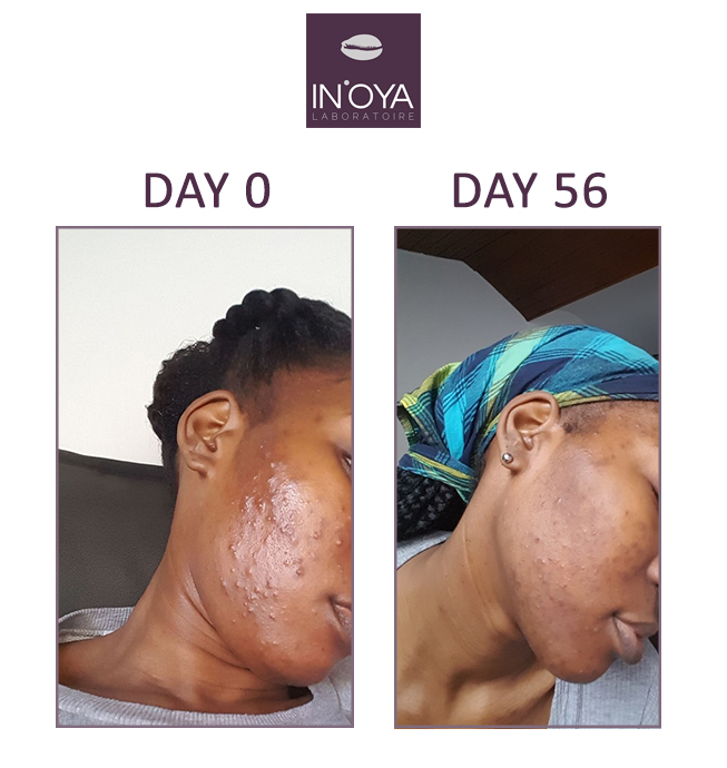 Results of spot treatments & acne on black skin