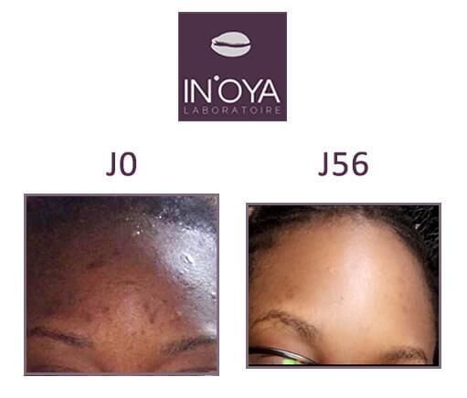 Résultats traitements taches & acnés sur peau noire