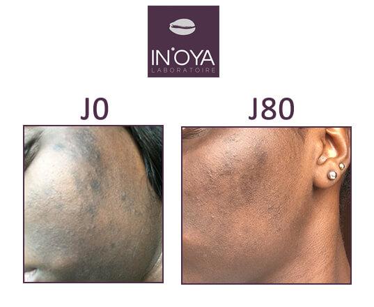 Traitement taches et bouton sur peau noire avec IN'OYA
