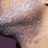 Care and Maintenance of Black Men's Skin
