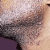 Boutons de barbe peau noire