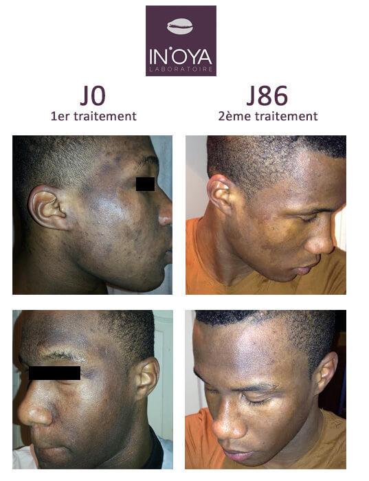 Lahat a utilisé les produits IN'OYA pour traiter ses taches et sa peau sèche