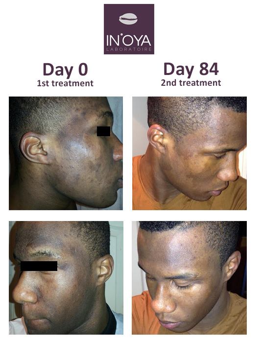 Lahat – Testimonial of a man using IN'OYA products