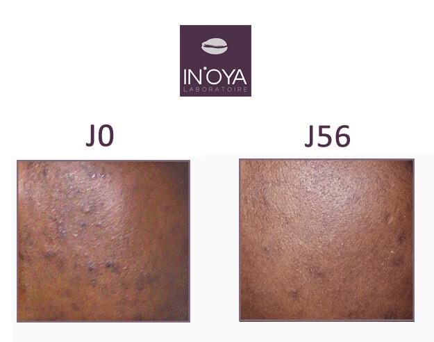 Avis sur les produits IN'OYA - Manuella