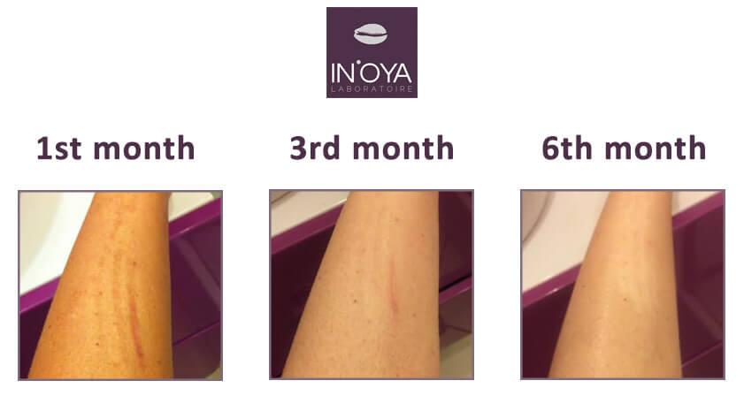 White Skin Feedback on the IN'OYA Correcting Serum