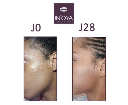 Avant après traitement boutons avec IN'OYA sur peau noire