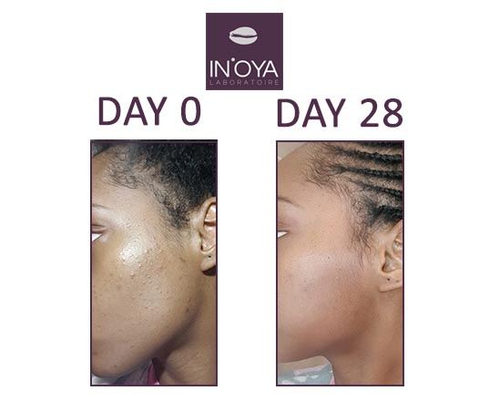 Before and after using IN'OYA treatment for dark skin