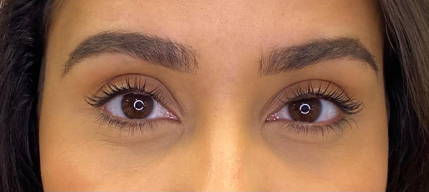 eye area black skin - matte skin