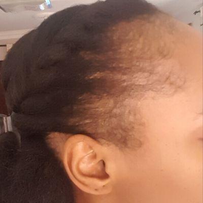 female traction alopecia