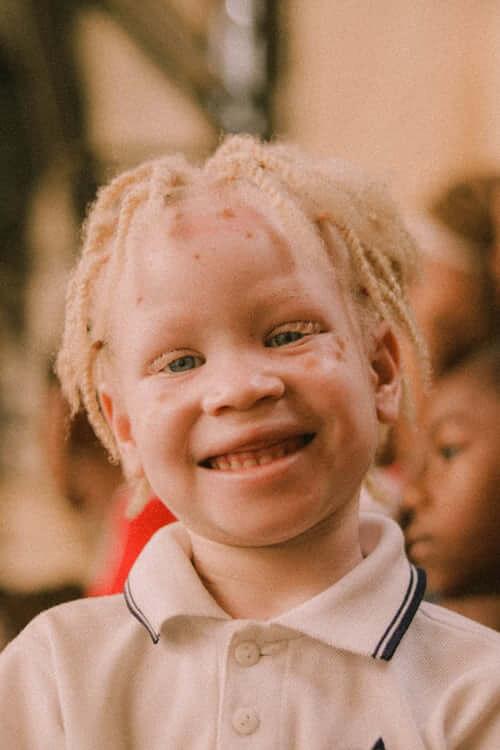 Albinos enfant africain
