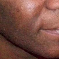 points noires sur peau noire