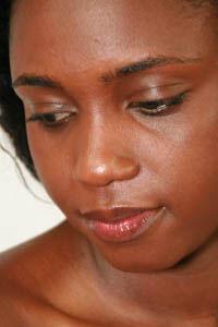 Dépigmentation de la peau noire