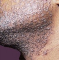 boutons de rasage sur une peau noire