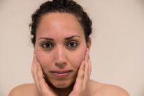 Régénérer et réparer une peau noire