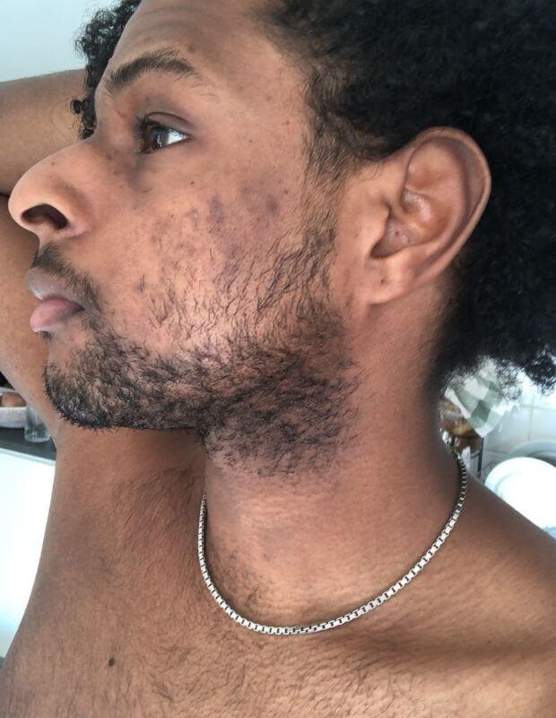 soins acné taches homme peau noire