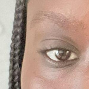 pigmented dark circles